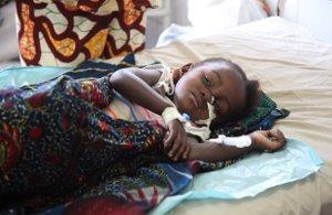 malnourished-child-in-DRC1-p.jpeg